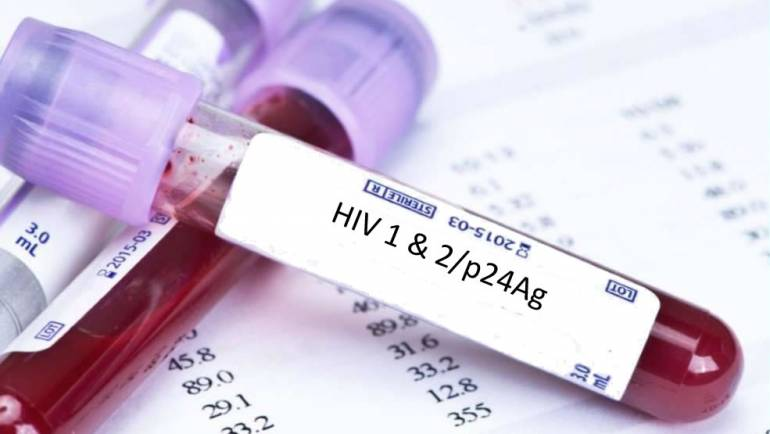 """CSIC attended the workshop """"Technologies for HIV Self-Testing: Detection of acute or rebound viremia"""""""